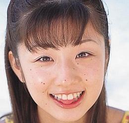 小倉優子の昔!整形前のあごのほくろも除去してない時が別人