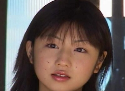 小倉優子 当時 ほくろ 整形